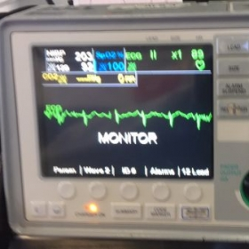 differences in vitals