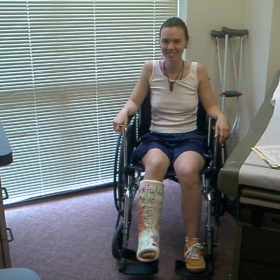 Rehab & Recovery from Car Accident, Bone Breaks, Neck Injury, Traumatic Brain Injury