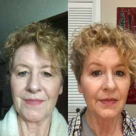 These are before & after photos of Carla. She had an online lesson very recently. Her review is on my profile here.
